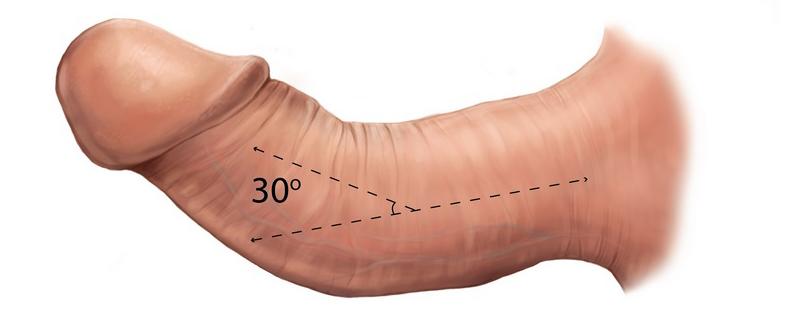 zakriveny penis